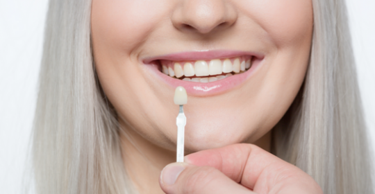 I'm Thinking of Getting Veneers – What Do I Need to Know?