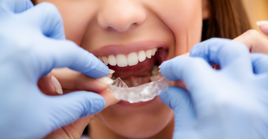 Invisalign vs Braces: Which One Is Better?