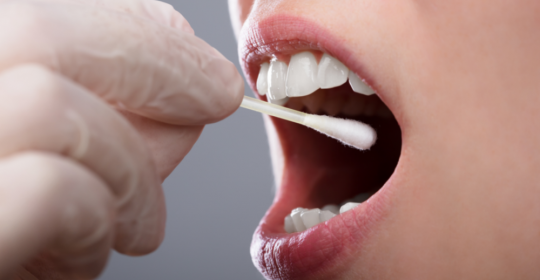 Mouth Ulcers: Cause and Treatments